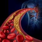 Clogged Artery — Stock Photo