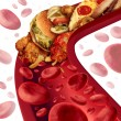 Cholesterol Blocked Artery — Stock Photo