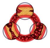 Enfermedad arterial coronaria — Foto de Stock