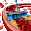 Cleaning Arteries — Stock Photo #45478125
