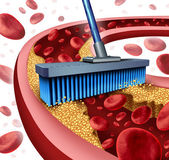 Cleaning Arteries — Stock Photo