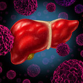 Human Liver Cancer — Stock Photo