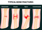 Typical bone fractures — Vettoriale Stock