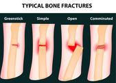 Typical bone fractures — Stock Vector