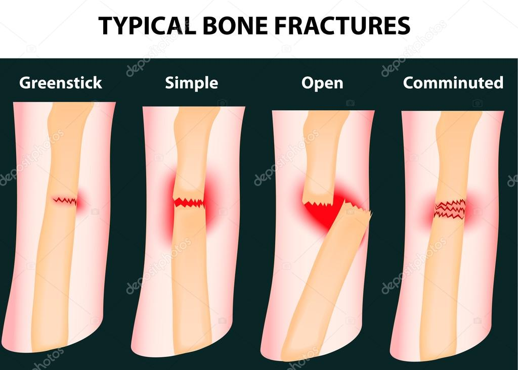 Typical bone fractures. Vector scheme — Stock Vector #14262625
