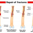 Bone fracture healing process - Stock Vector