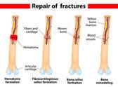 Processo de consolidação de fratura óssea — Vetorial Stock