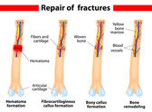 Bone fracture healing process — Stock Vector