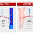 图库矢量图片: VARICOSE VEINS. Medical illustration