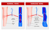 VARICOSE VEINS. Medical illustration — Stock vektor