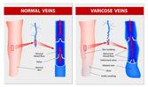 VARICOSE VEINS. Medical illustration — Stock Vector