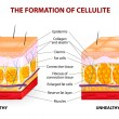 The formation of cellulite. Vector diagram — Stock Vector