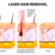 Stock Vector: Laser hair removal. Vector diagram