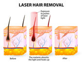 Laser hair removal. Vector diagram — Stock Vector