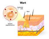 Anatomy of Wart — Stock Vector