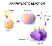Alergia e anafilaxia — Vetor de Stock