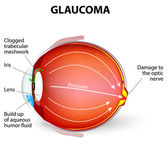 Glaucoma — Stock Vector