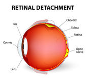 Retinal detachment. Vector diagram — Stock Vector
