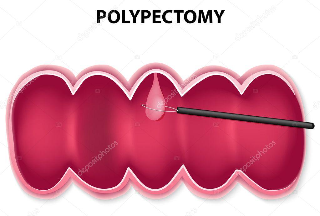 Полипэктомия фото