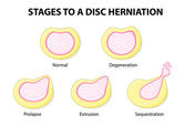 Stages to a disc herniation — Stock Vector