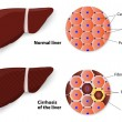������, ������: Healthy Liver and Cirrhosis