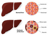 Healthy Liver and Cirrhosis — Stock Vector