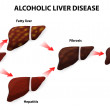 ������, ������: Alcoholic liver disease