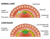 Normal liver and liver injury. — Stock Vector