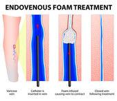 Foam Sclerotherapy. Sclerofoam — Stock Vector
