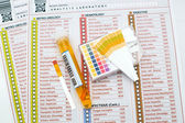 Urinalysis — Stock Photo