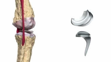 Knee and titanium hinge joint process — Stock Video