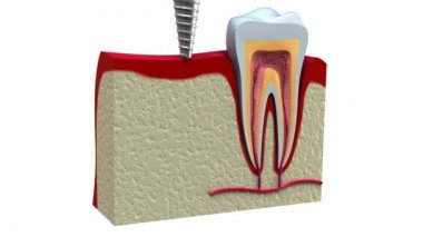 Anatomy of healthy teeth and dental implant in jaw bone. — Stock Video