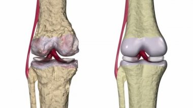 Osteoarthritis : Knee joint with ligaments and cartilages — Stock Video