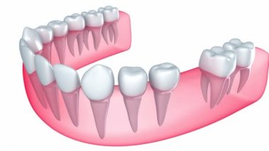 Implant is embedded in the gum — Stock Video