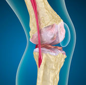 Osteoporosis of the knee joint — 图库照片