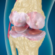 Stock Photo: Osteoarthritis : Knee