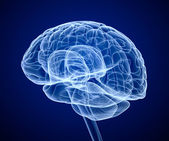 Gehirn-scan, x-ray — Stockfoto