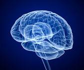 Scintigraphie cérébrale, rayon x — Photo