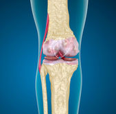 Osteoporosis of the knee joint. — Stock Photo