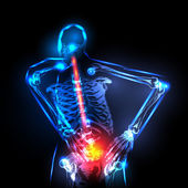 Human backbone in x-ray, back Pain, easy editable — Stock Vector