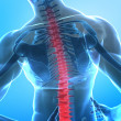 Pain in spine — Stock Photo #13279711