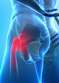 Pain in hip concept — Stockfoto