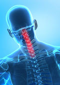 Pain in cervical spine concept — Stock Photo