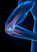 X-ray elbow concept — Stock Photo
