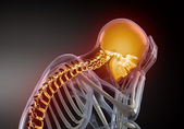 Head Pain concept — Stock Photo