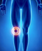 Human knee problem with highlighted area — Stock Photo