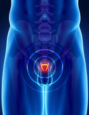 Conceito de câncer de próstata — Foto Stock