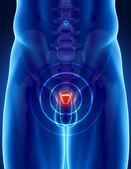 Koncepcja raka prostaty — Zdjęcie stockowe