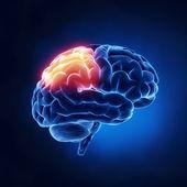Parietal lobe - Human brain in x-ray view — Stock Photo