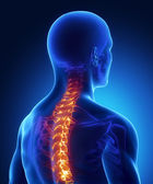 Backbone injury in x-ray — Stock Photo